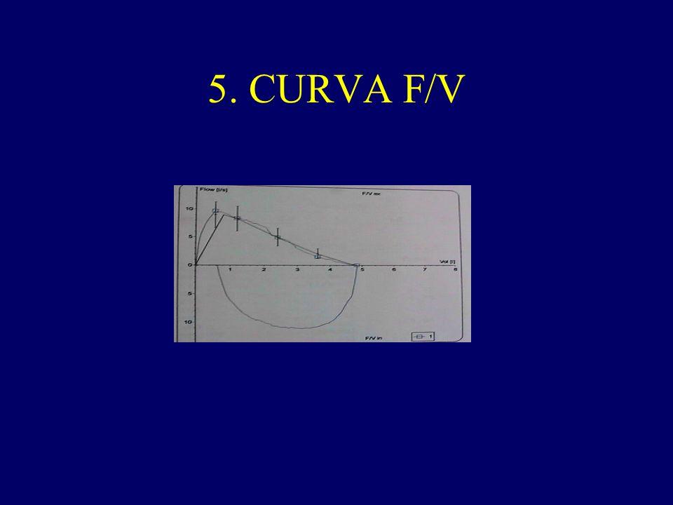 5. CURVA F/V