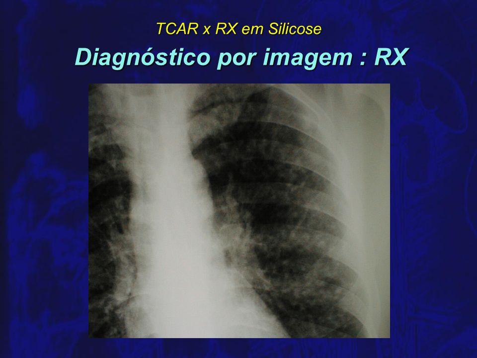 Diagnóstico por imagem : RX