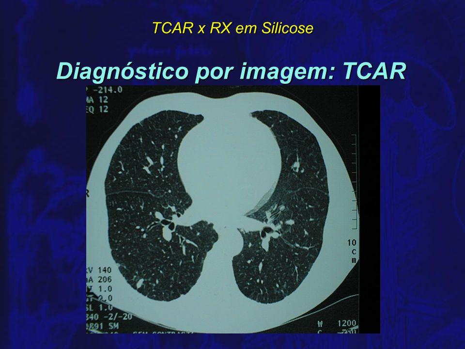Diagnóstico por imagem: TCAR