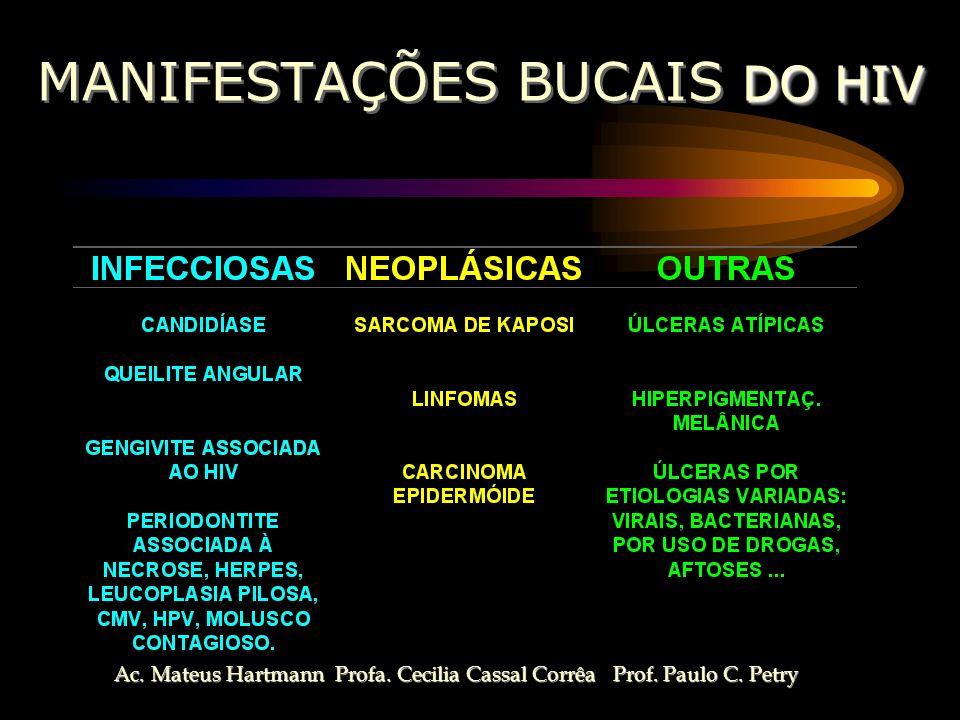 MANIFESTAÇÕES BUCAIS DO HIV