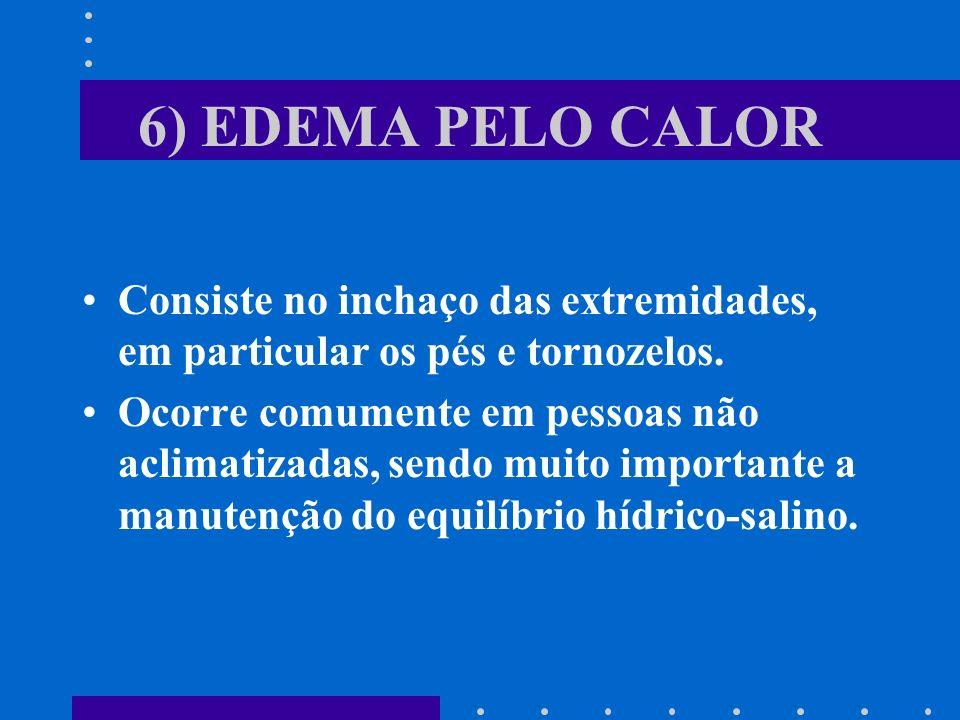 6) EDEMA PELO CALOR Consiste no inchaço das extremidades, em particular os pés e tornozelos.