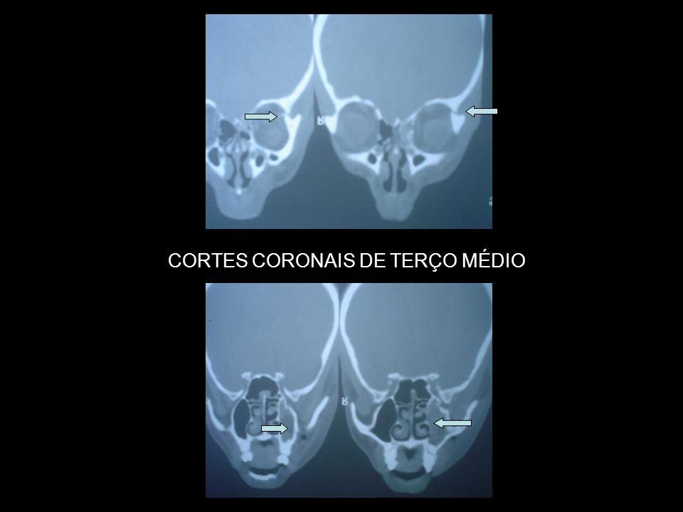 CORTES CORONAIS DE TERÇO MÉDIO