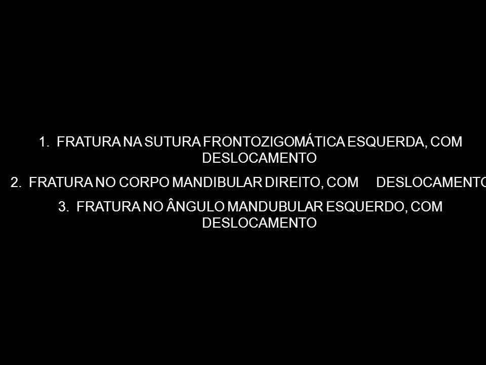FRATURA NA SUTURA FRONTOZIGOMÁTICA ESQUERDA, COM DESLOCAMENTO