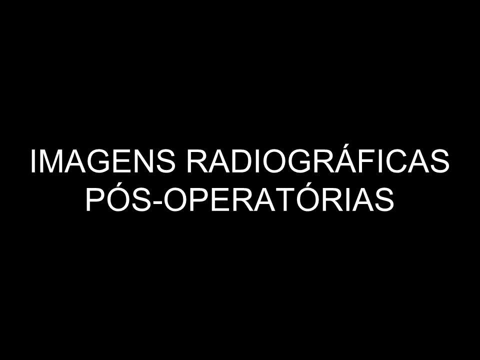 IMAGENS RADIOGRÁFICAS PÓS-OPERATÓRIAS