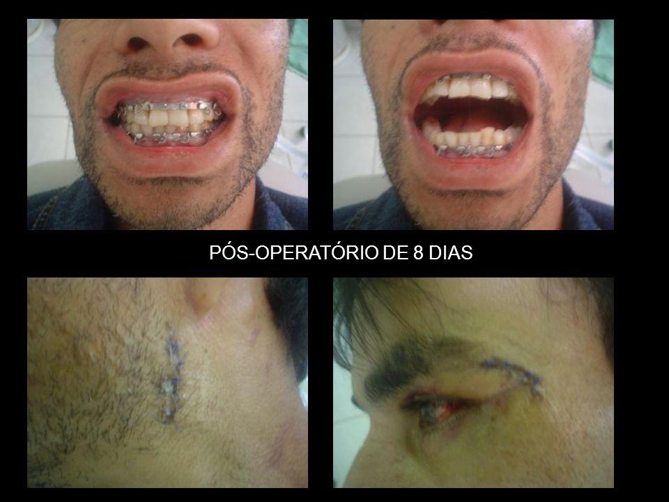 PÓS-OPERATÓRIO DE 8 DIAS
