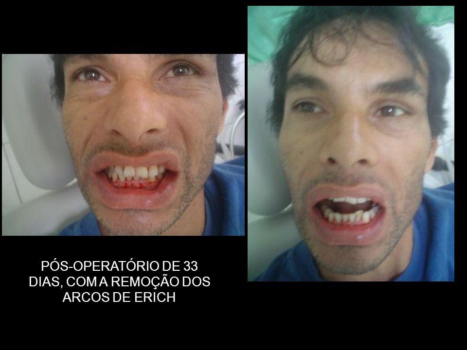 PÓS-OPERATÓRIO DE 33 DIAS, COM A REMOÇÃO DOS ARCOS DE ERICH