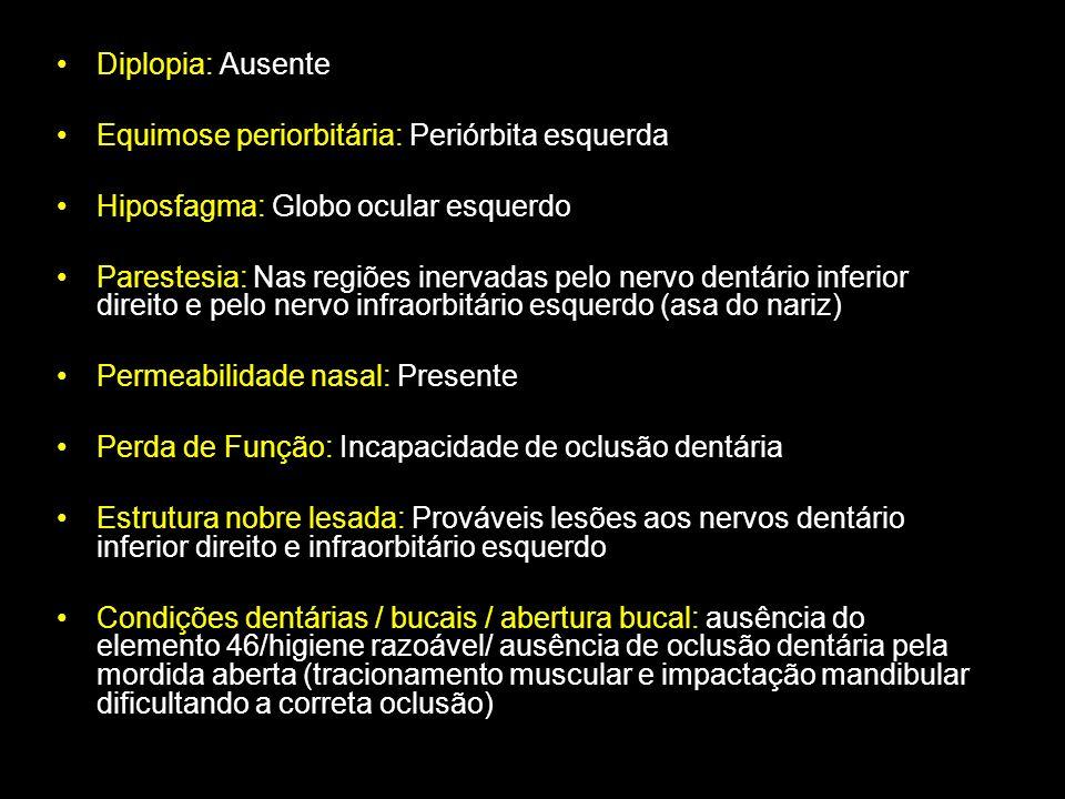Diplopia: Ausente Equimose periorbitária: Periórbita esquerda. Hiposfagma: Globo ocular esquerdo.