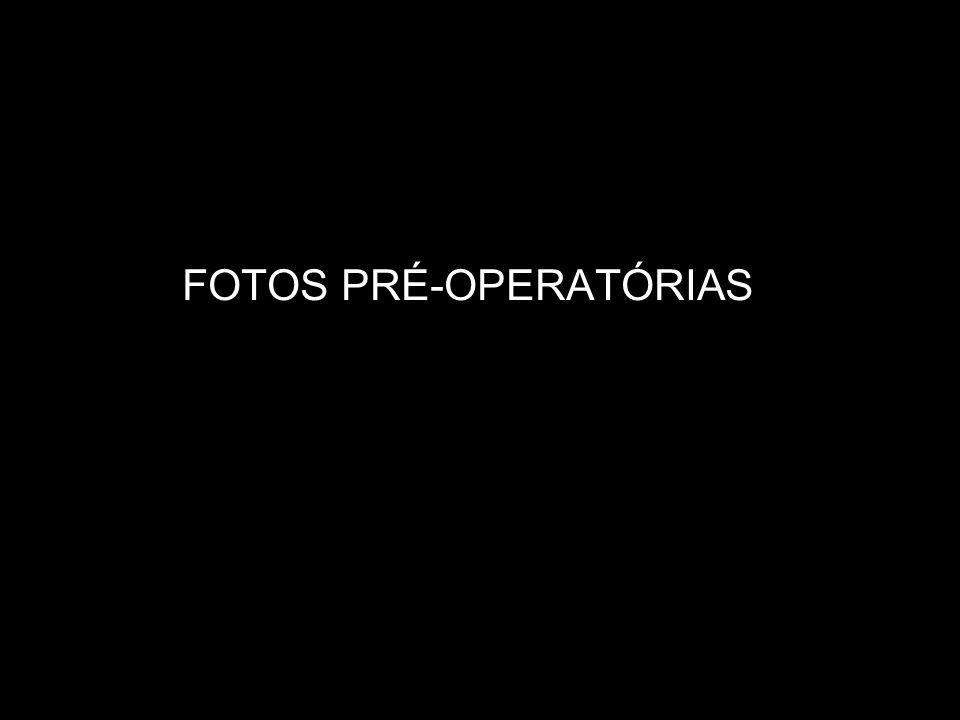 FOTOS PRÉ-OPERATÓRIAS