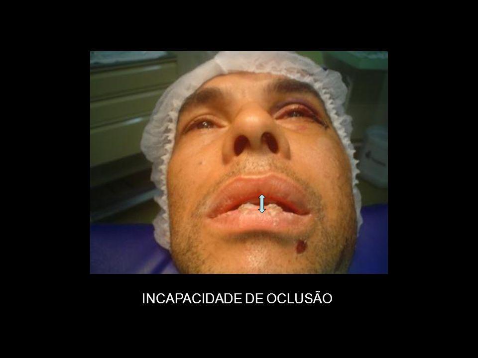 INCAPACIDADE DE OCLUSÃO