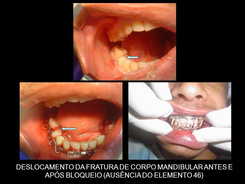 DESLOCAMENTO DA FRATURA DE CORPO MANDIBULAR ANTES E APÓS BLOQUEIO (AUSÊNCIA DO ELEMENTO 46)