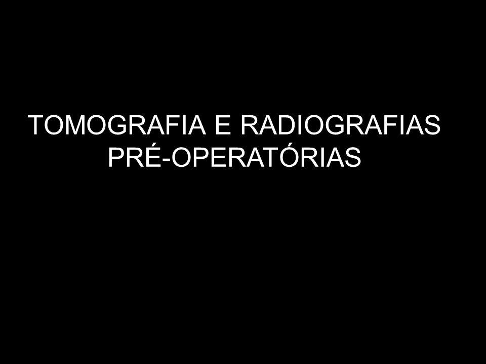 TOMOGRAFIA E RADIOGRAFIAS PRÉ-OPERATÓRIAS