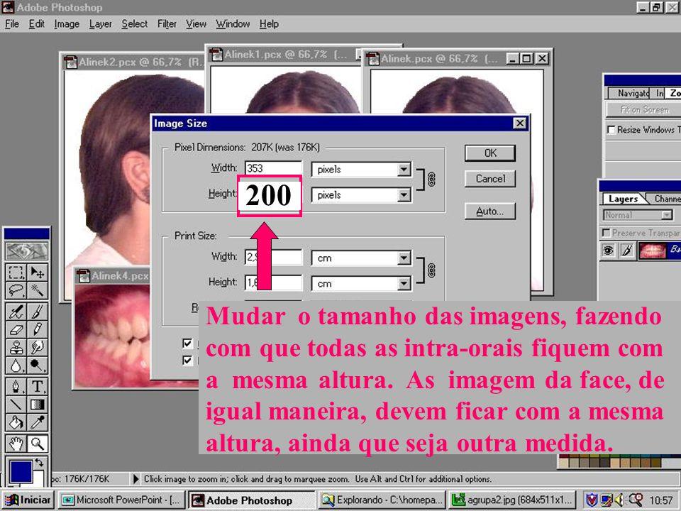 200Mudar o tamanho das imagens, fazendo com que todas as intra-orais fiquem com a mesma altura. As imagem da face, de.