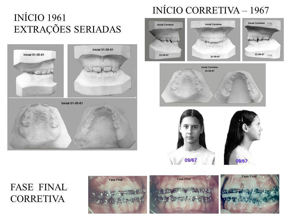 INÍCIO CORRETIVA – 1967 INÍCIO 1961 EXTRAÇÕES SERIADAS FASE FINAL CORRETIVA