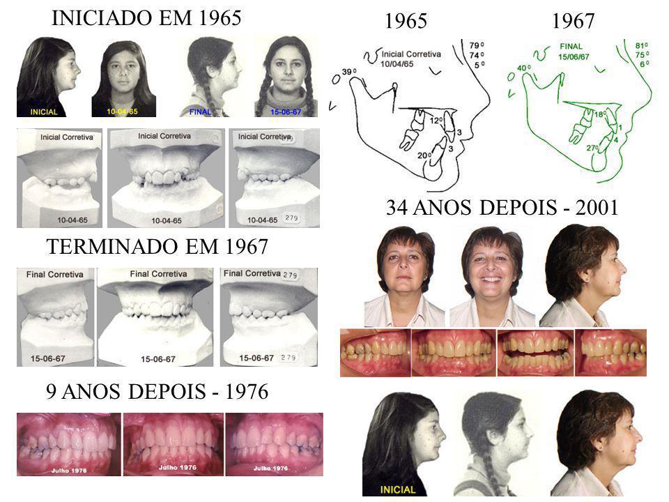 INICIADO EM 1965 1965 1967. 34 ANOS DEPOIS - 2001.