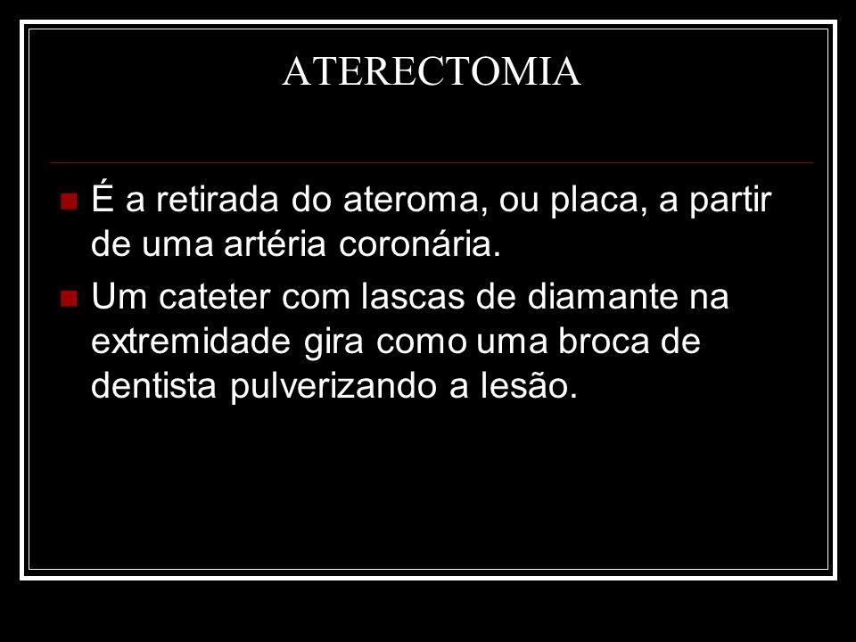 ATERECTOMIA É a retirada do ateroma, ou placa, a partir de uma artéria coronária.