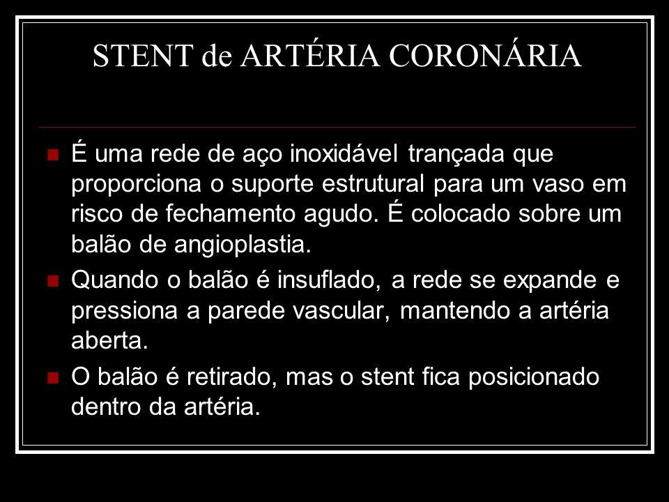 STENT de ARTÉRIA CORONÁRIA