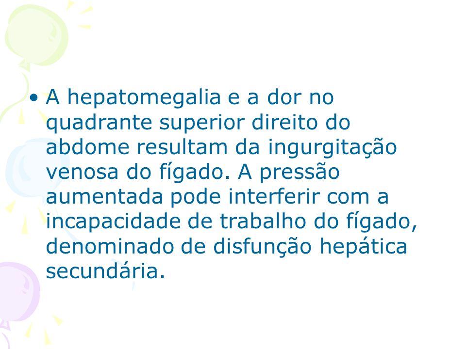 A hepatomegalia e a dor no quadrante superior direito do abdome resultam da ingurgitação venosa do fígado.