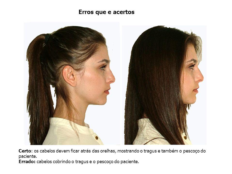 Erros que e acertos Certo: os cabelos devem ficar atrás das orelhas, mostrando o tragus e também o pescoço do paciente.