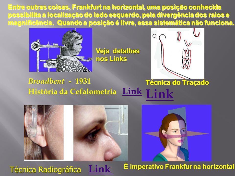 Link Broadbent - 1931 História da Cefalometria Link