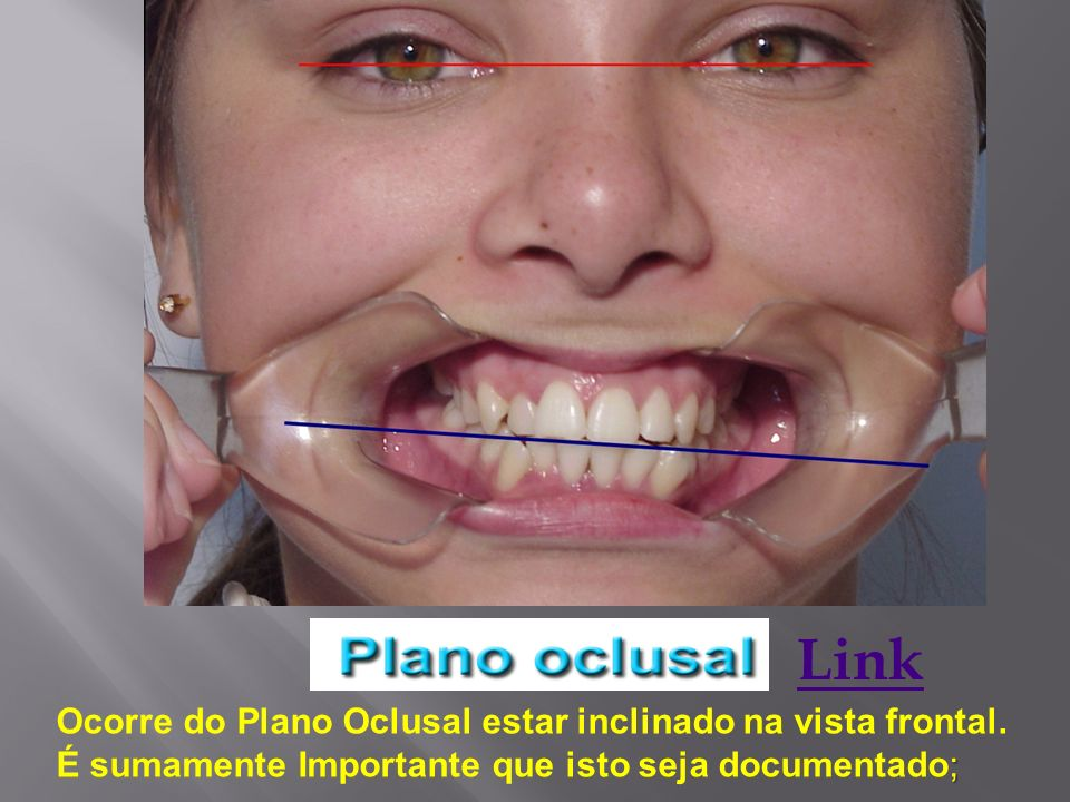 Link Ocorre do Plano Oclusal estar inclinado na vista frontal.