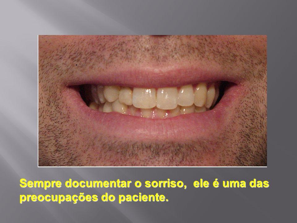Sempre documentar o sorriso, ele é uma das