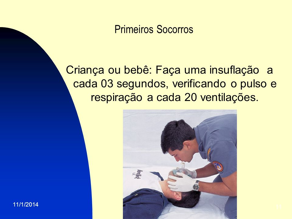 Primeiros Socorros Criança ou bebê: Faça uma insuflação a cada 03 segundos, verificando o pulso e respiração a cada 20 ventilações.