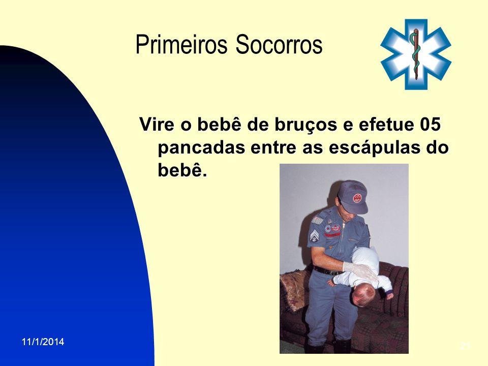 Primeiros SocorrosVire o bebê de bruços e efetue 05 pancadas entre as escápulas do bebê.