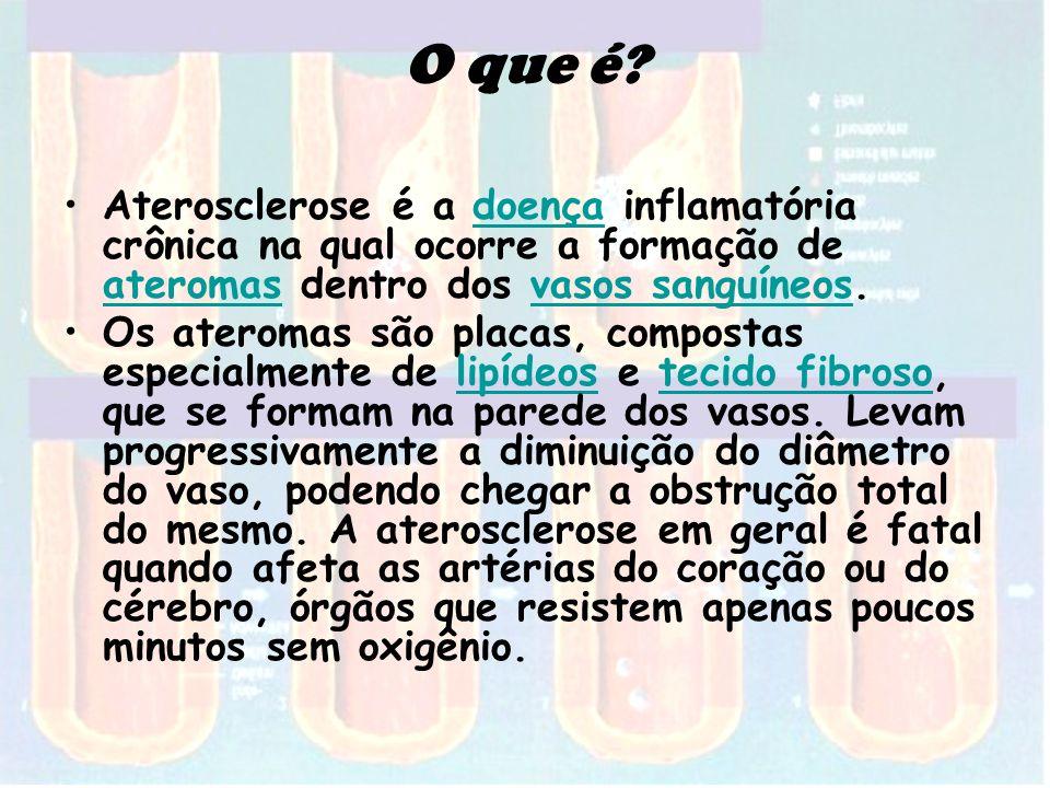 O que é Aterosclerose é a doença inflamatória crônica na qual ocorre a formação de ateromas dentro dos vasos sanguíneos.