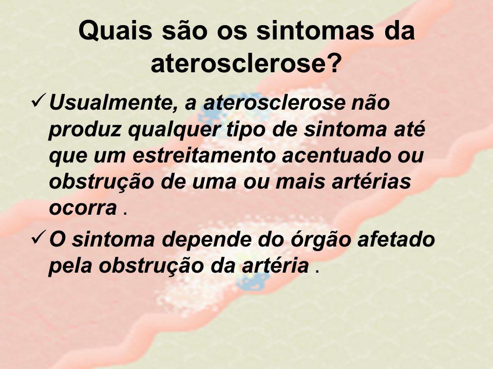 Quais são os sintomas da aterosclerose