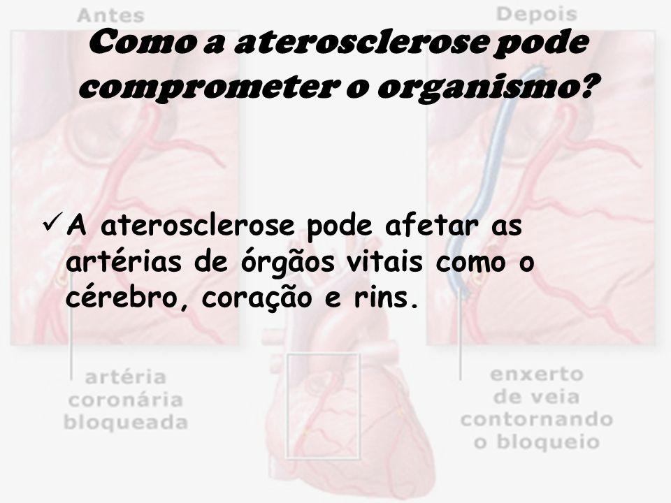 Como a aterosclerose pode comprometer o organismo