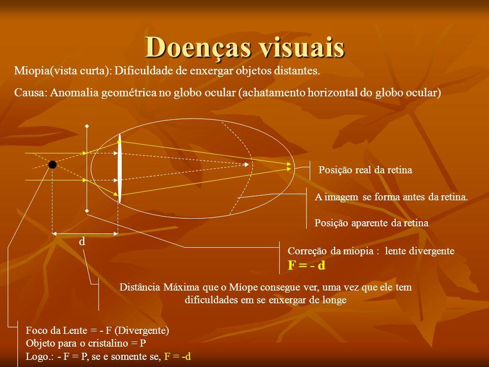 Doenças visuais Miopia(vista curta): Dificuldade de enxergar objetos distantes.