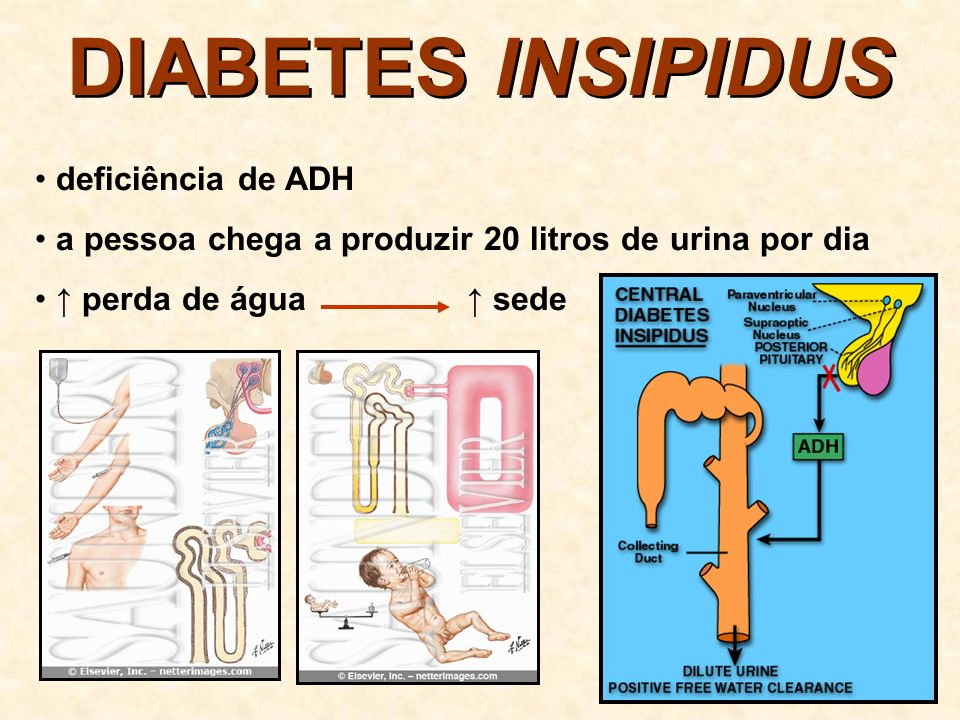 DIABETES INSIPIDUS deficiência de ADH