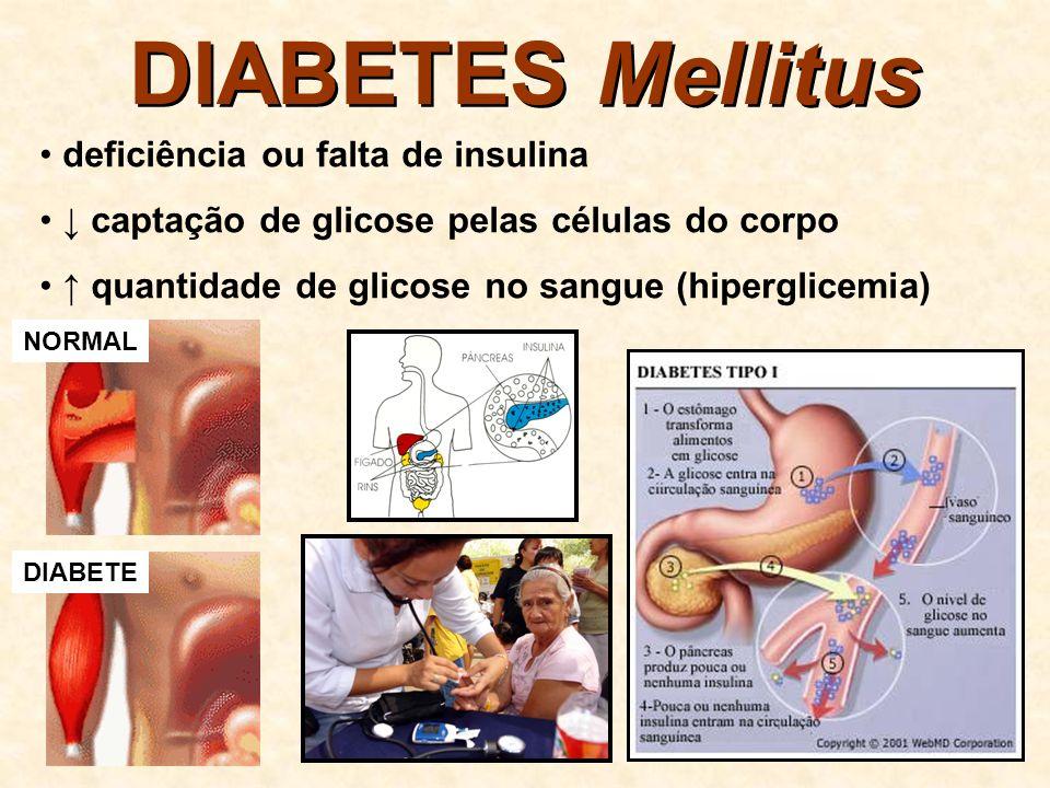 DIABETES Mellitus deficiência ou falta de insulina
