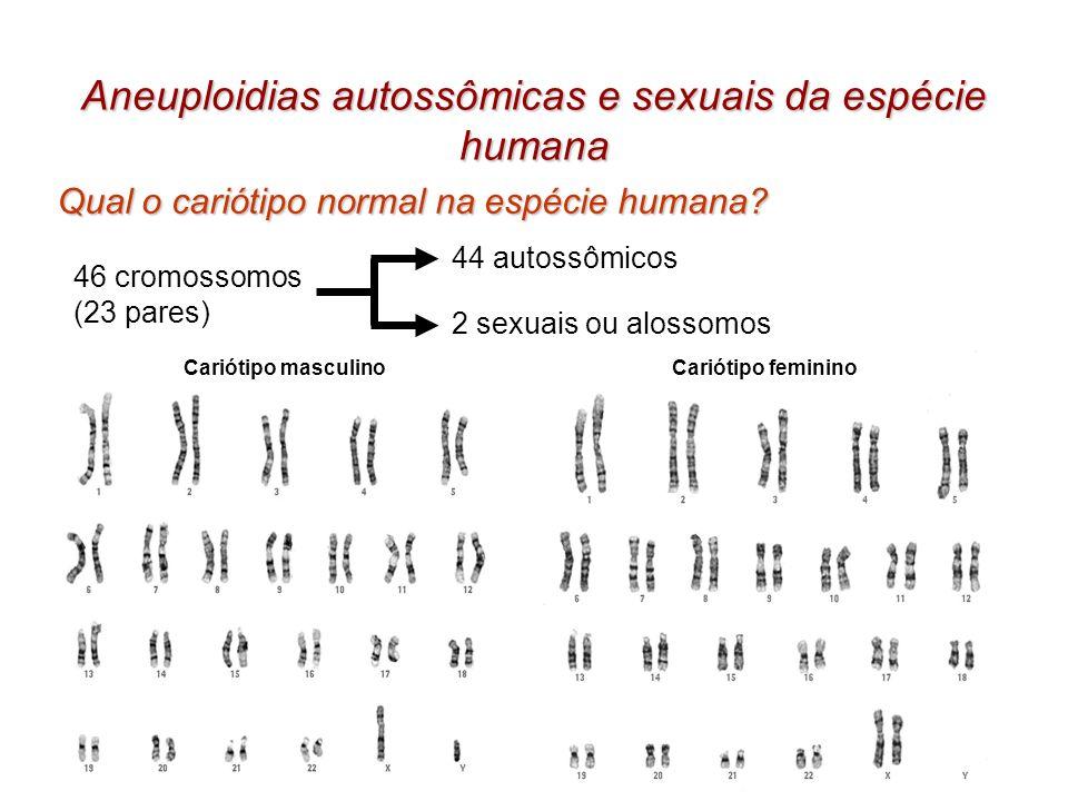 Aneuploidias autossômicas e sexuais da espécie humana