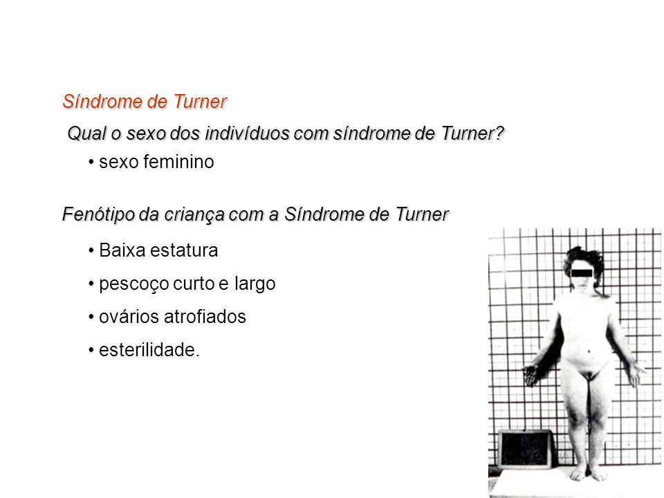 Síndrome de Turner Qual o sexo dos indivíduos com síndrome de Turner sexo feminino. Fenótipo da criança com a Síndrome de Turner.