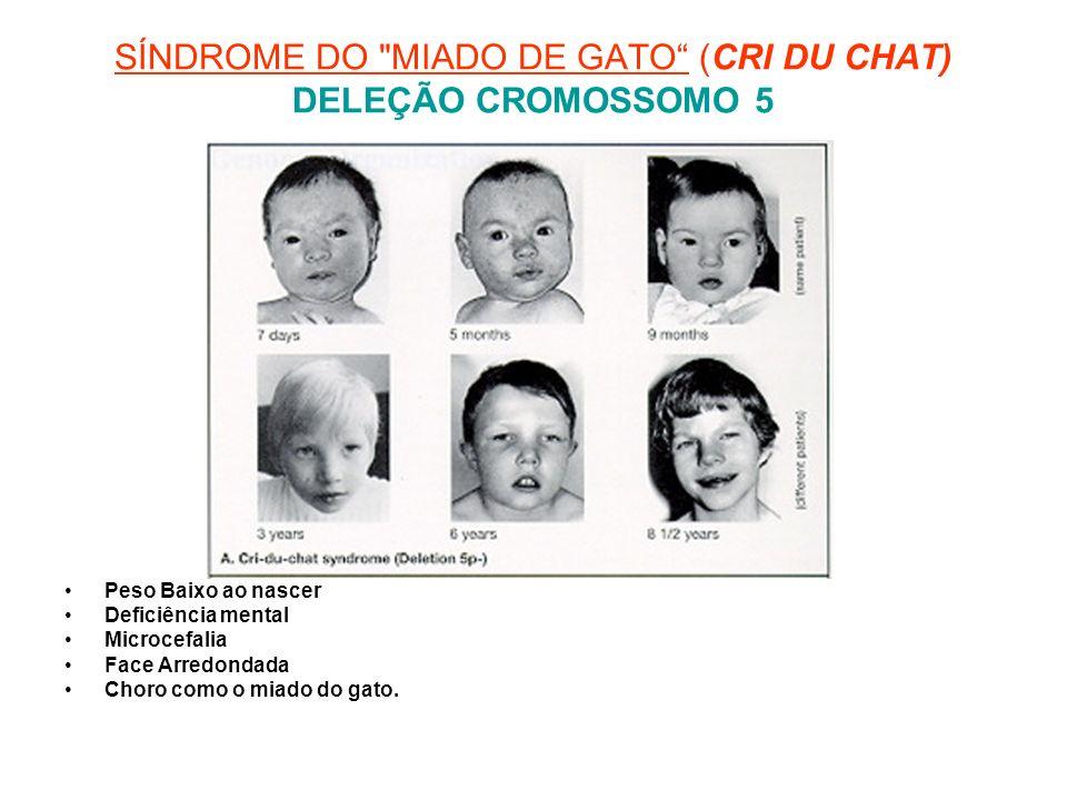 SÍNDROME DO MIADO DE GATO (CRI DU CHAT) DELEÇÃO CROMOSSOMO 5