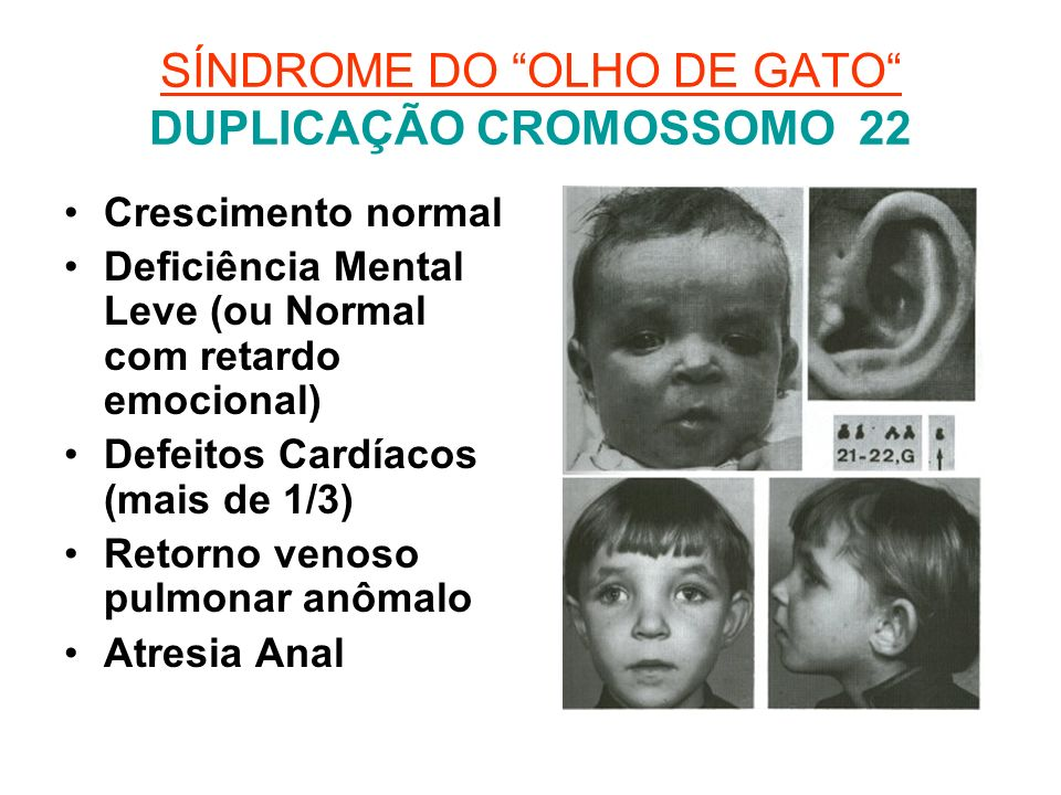 SÍNDROME DO OLHO DE GATO DUPLICAÇÃO CROMOSSOMO 22