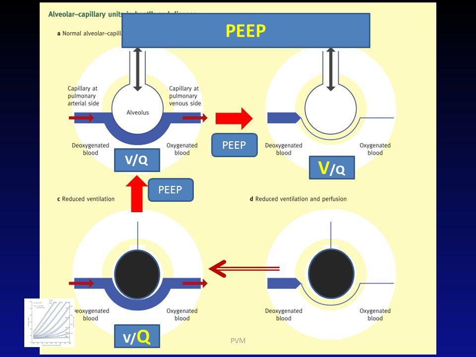 PEEP PEEP V/Q V/Q PEEP V/Q PVM