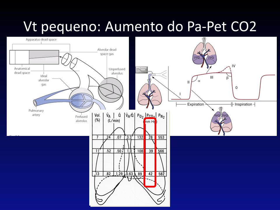 Vt pequeno: Aumento do Pa-Pet CO2
