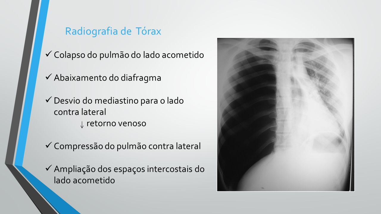 Radiografia de Tórax Colapso do pulmão do lado acometido