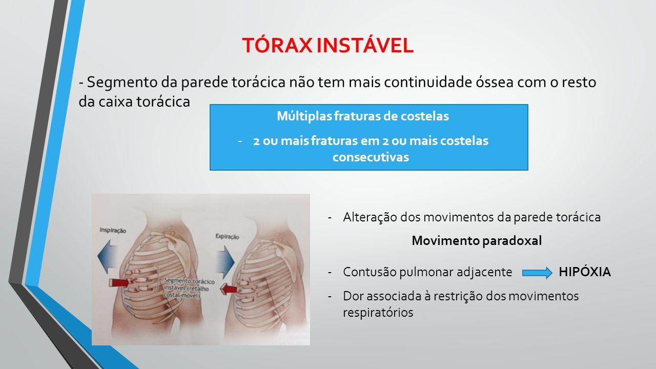 TÓRAX INSTÁVEL - Segmento da parede torácica não tem mais continuidade óssea com o resto da caixa torácica.
