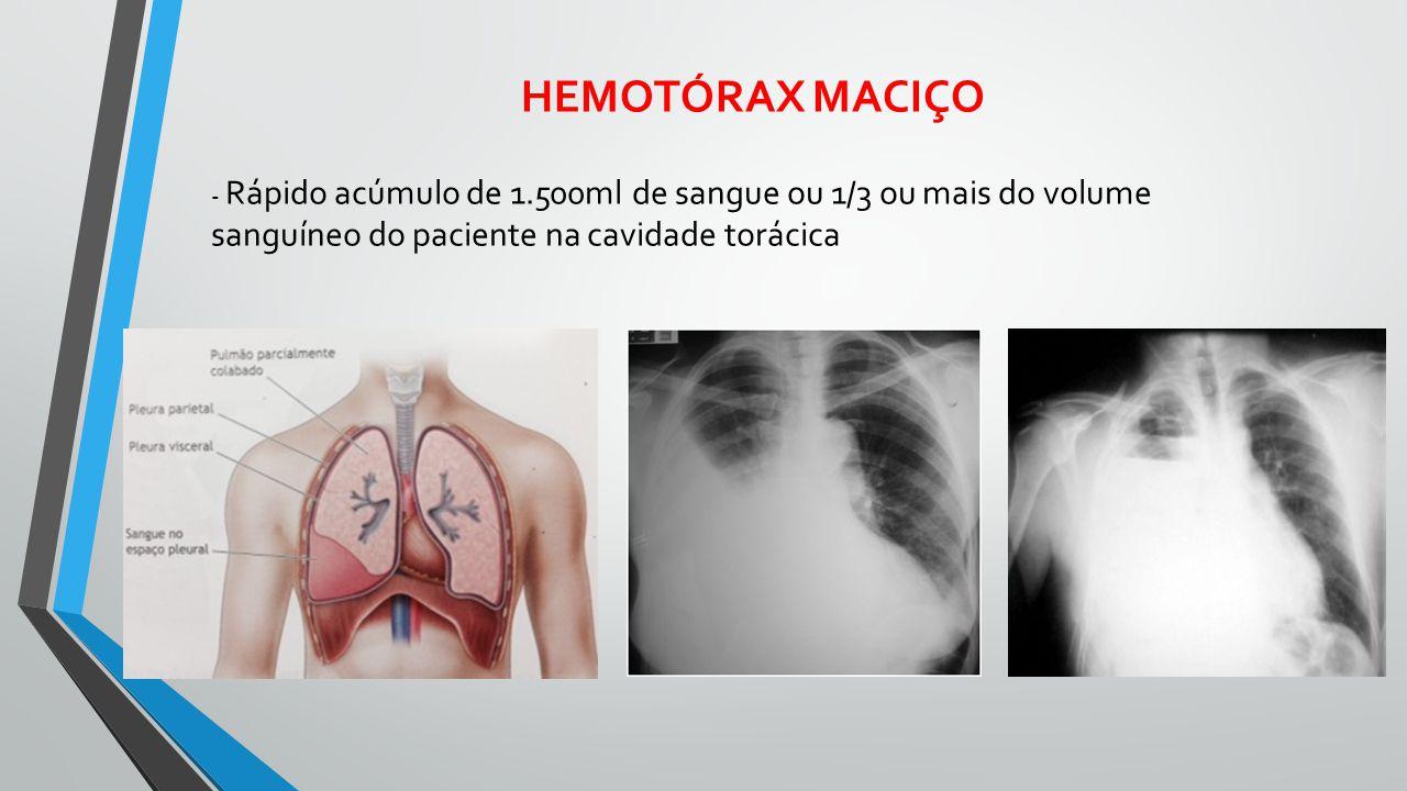 HEMOTÓRAX MACIÇO - Rápido acúmulo de 1.500ml de sangue ou 1/3 ou mais do volume sanguíneo do paciente na cavidade torácica.