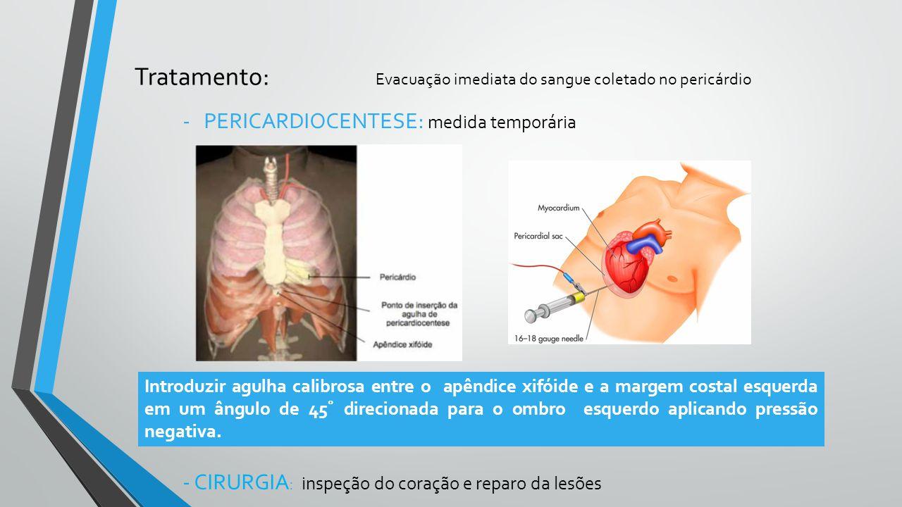 Tratamento: Evacuação imediata do sangue coletado no pericárdio
