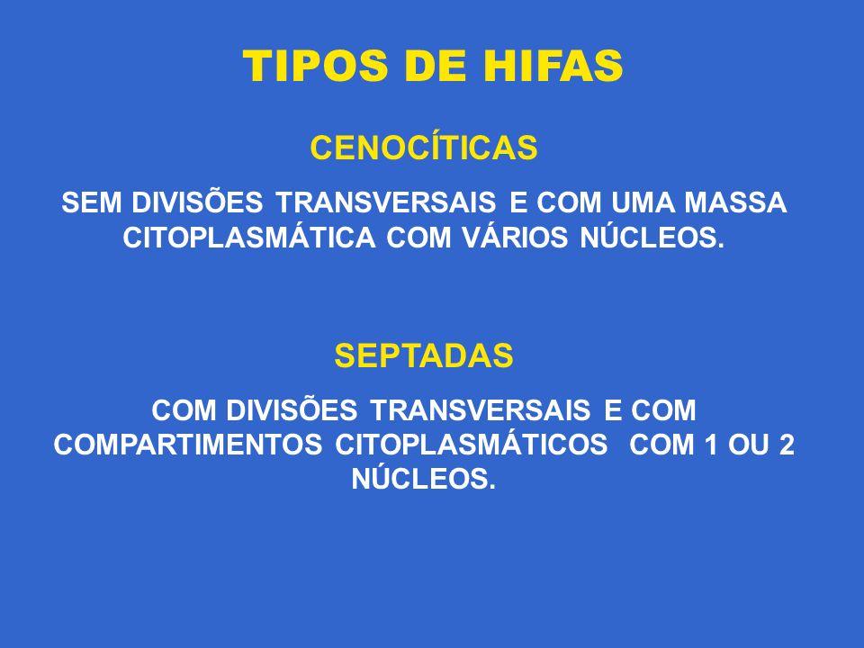 TIPOS DE HIFAS CENOCÍTICAS SEPTADAS