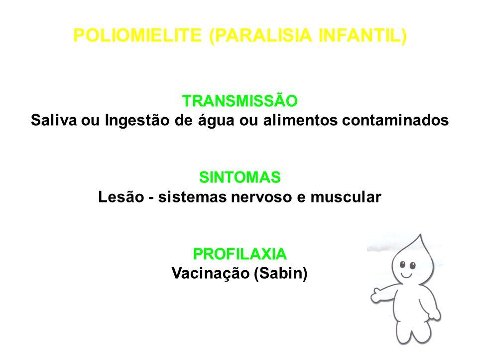 POLIOMIELITE (PARALISIA INFANTIL)