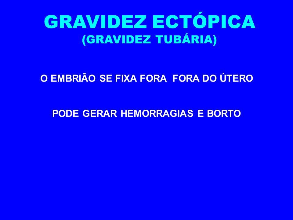 O EMBRIÃO SE FIXA FORA FORA DO ÚTERO PODE GERAR HEMORRAGIAS E BORTO