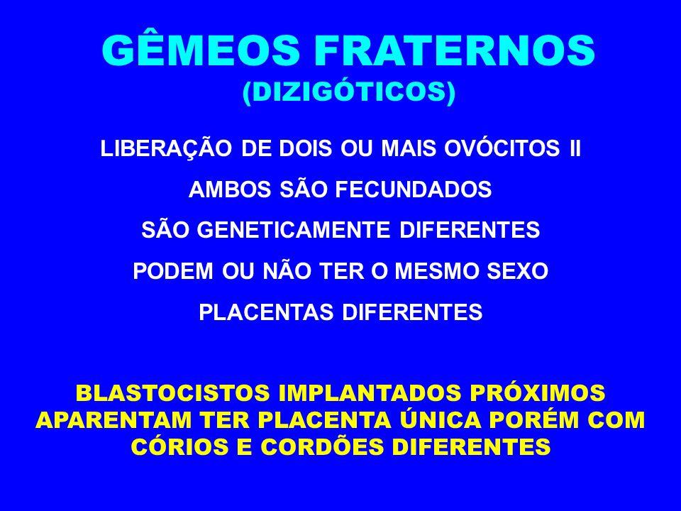 GÊMEOS FRATERNOS (DIZIGÓTICOS) LIBERAÇÃO DE DOIS OU MAIS OVÓCITOS II