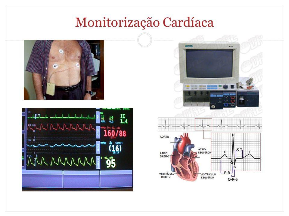 Monitorização Cardíaca