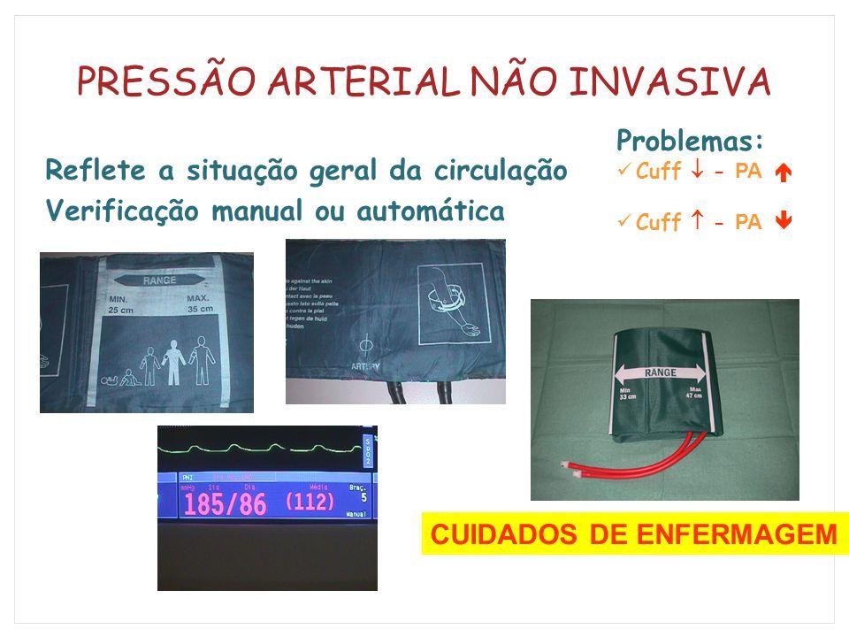 PRESSÃO ARTERIAL NÃO INVASIVA