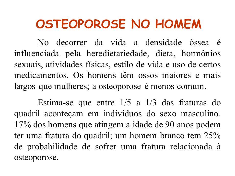 OSTEOPOROSE NO HOMEM